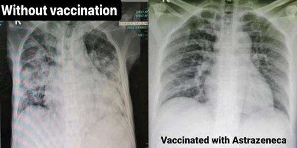 4 bức ảnh chụp phổi của bệnh nhân Covid-19 đã tiêm các loại vắc xin khác nhau và không tiêm: Kết quả gây sốc!-1