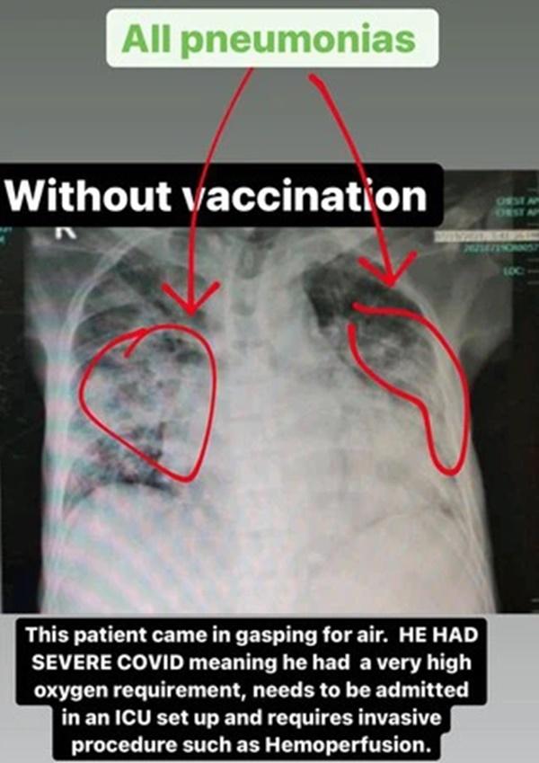 4 bức ảnh chụp phổi của bệnh nhân Covid-19 đã tiêm các loại vắc xin khác nhau và không tiêm: Kết quả gây sốc!-3