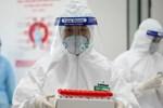 Sáng 28/7, Hà Nội phát hiện thêm 18 ca dương tính SARS-CoV-2 ở 4 chùm ca bệnh-2