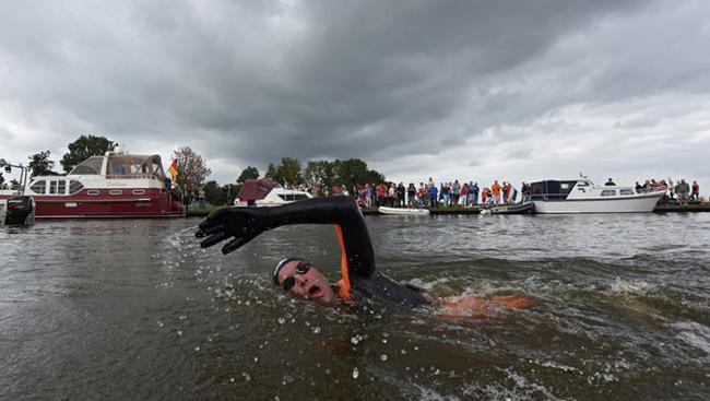 Không ai có thể tưởng tượng đây là bàn chân của VĐV bơi lội Olympic cùng câu chuyện nhói lòng đằng sau-8