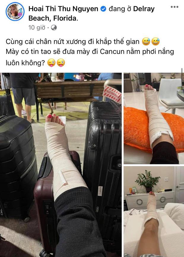 Hoa hậu Thu Hoài gặp chấn thương nghiêm trọng ở Mỹ, Hari Won - Mai Hồ cùng dàn sao Việt đồng loạt lo lắng hỏi thăm-1