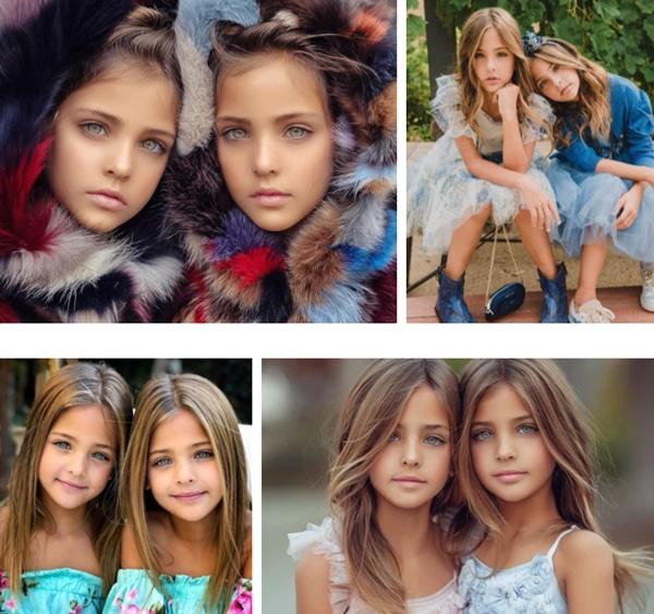 """2 chị em từng được mệnh danh là cặp song sinh xinh đẹp nhất thế giới"""", được săn đón khi mới 6 tháng tuổi bây giờ ra sao?-7"""