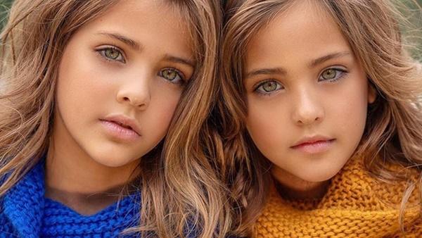 """2 chị em từng được mệnh danh là cặp song sinh xinh đẹp nhất thế giới"""", được săn đón khi mới 6 tháng tuổi bây giờ ra sao?-6"""