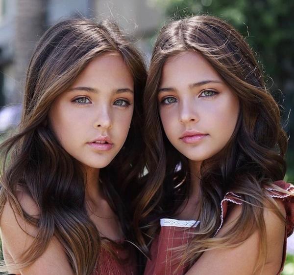 """2 chị em từng được mệnh danh là cặp song sinh xinh đẹp nhất thế giới"""", được săn đón khi mới 6 tháng tuổi bây giờ ra sao?-11"""