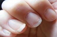5 dấu hiệu trên móng tay cho thấy cơ thể bạn đang thiếu chất dinh dưỡng