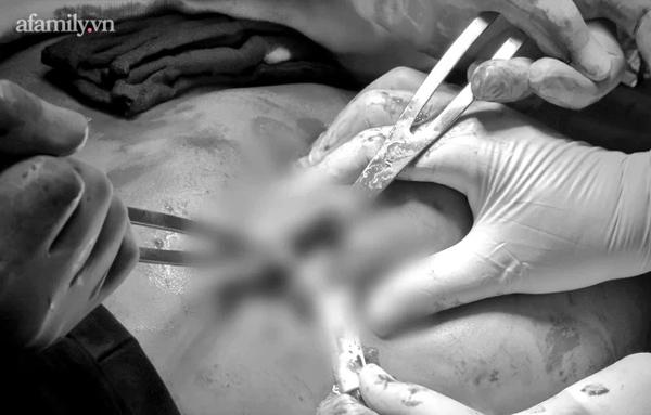 TP.HCM: Người phụ nữ bị biến chứng nặng nề giữa mùa dịch vì tiêm filler nâng mông rồi làm xẹp, rồi lại... tiêm tiếp-5