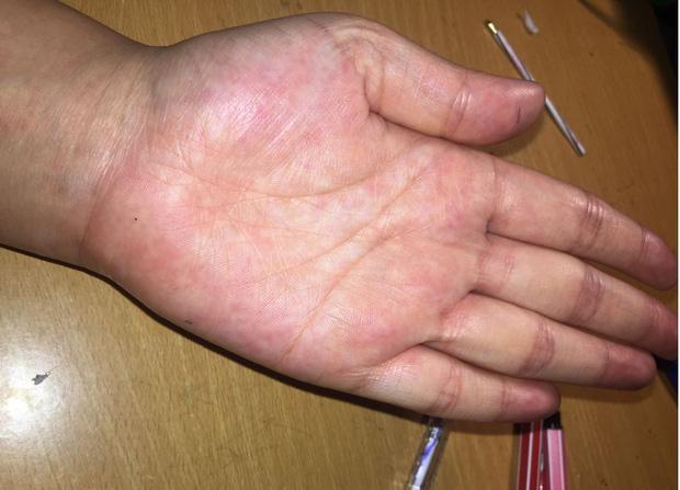 Người có gan kém thường có 4 biểu hiện bất thường ở bàn tay, nếu không có thì gan vẫn rất khỏe mạnh-1
