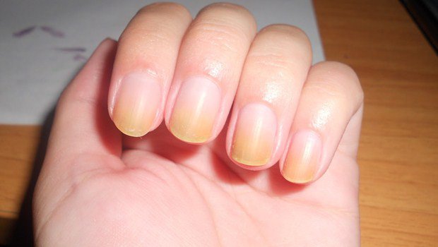 Người có gan kém thường có 4 biểu hiện bất thường ở bàn tay, nếu không có thì gan vẫn rất khỏe mạnh-3