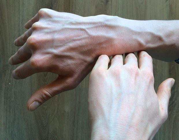 Người có gan kém thường có 4 biểu hiện bất thường ở bàn tay, nếu không có thì gan vẫn rất khỏe mạnh-4