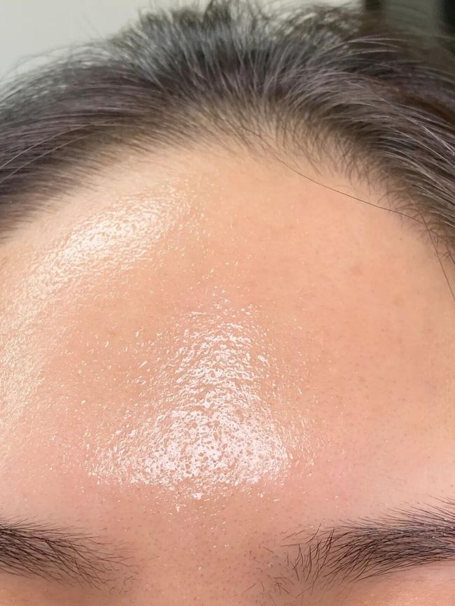 Làn da xuất hiện 5 dấu hiệu này thì chứng tỏ bạn đang bị kích ứng với mỹ phẩm đang dùng-2