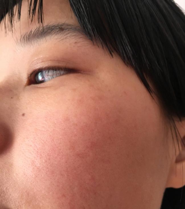 Làn da xuất hiện 5 dấu hiệu này thì chứng tỏ bạn đang bị kích ứng với mỹ phẩm đang dùng-3