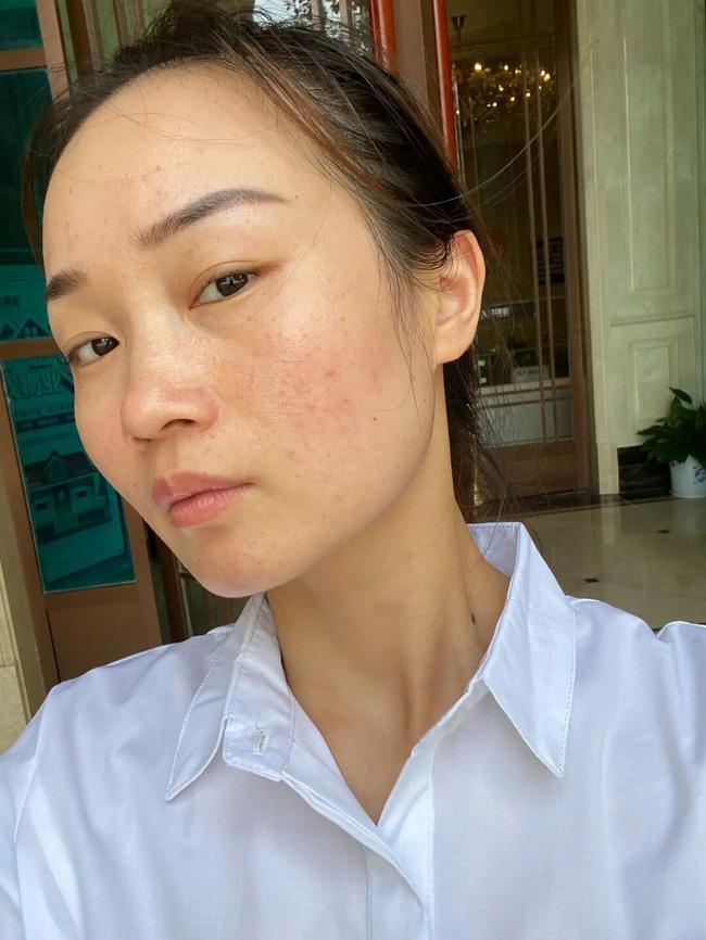Làn da xuất hiện 5 dấu hiệu này thì chứng tỏ bạn đang bị kích ứng với mỹ phẩm đang dùng-4