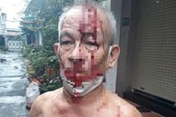 Thực hư clip người đàn ông đầu bê bết máu vì 'hỏi trợ cấp bị ném gạch vào đầu'