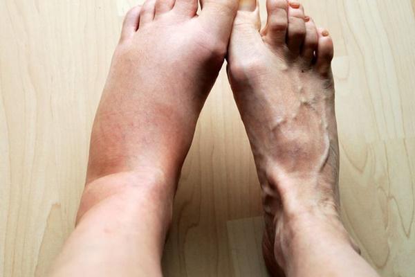 Nhìn bàn chân đoán bệnh: Có 4 điểm bất thường trên bàn chân, cần đi khám thận khẩn cấp-4
