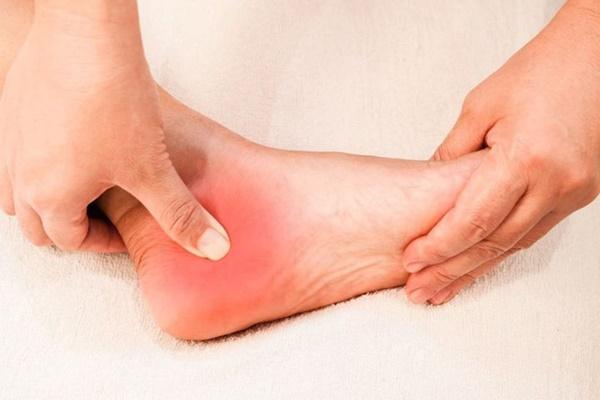Nhìn bàn chân đoán bệnh: Có 4 điểm bất thường trên bàn chân, cần đi khám thận khẩn cấp-3