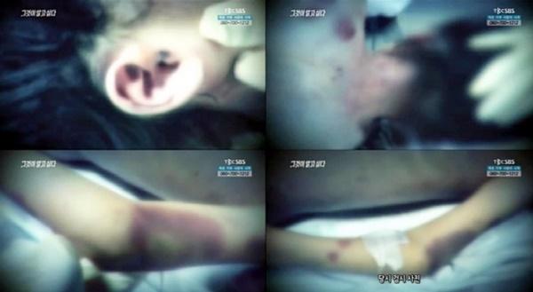 Em gái bị hành hạ đến chết, chị mang tiếng giết em lên tiếng vạch mặt mẹ kế tàn độc đẩy cuộc đời 2 đứa trẻ vào địa ngục-3