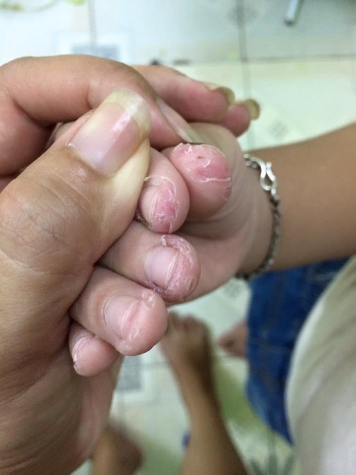 Trẻ nghiện cắn móng tay có thể bắt nguồn từ một căn bệnh tâm lý, cha mẹ cần loại bỏ càng sớm càng tốt-4