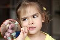 Trẻ 'nghiện' cắn móng tay có thể bắt nguồn từ một căn bệnh tâm lý, cha mẹ cần loại bỏ càng sớm càng tốt