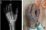 Người phụ nữ bị vi khuẩn 'ăn cụt' bàn tay chỉ sau vài giờ từ vết xước do vảy cá gây ra, bác sĩ đưa ra 6 lời khuyên để ngăn ngừa bị nhiễm bệnh