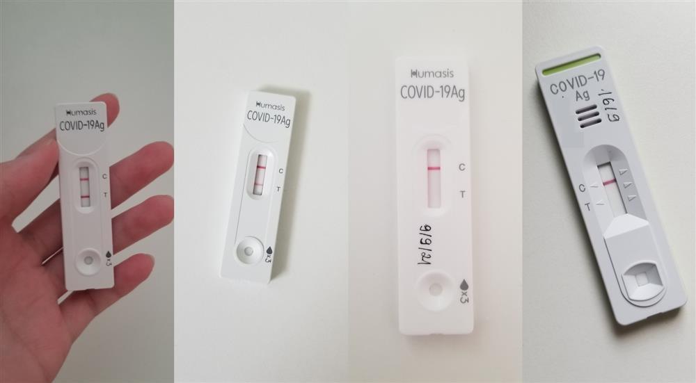 Di chứng sức khỏe của F0 hậu Covid-19-3