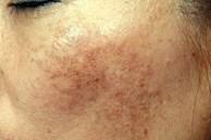 4 sai lầm nghiêm trọng khiến da bạn mãi xỉn màu, không thể sáng lên tông nào dù vất vả skincare