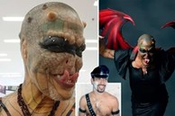 Cựu CEO ngân hàng cắt cụt tai, mũi, xẻ lưỡi và chuẩn bị cắt nốt của quý để biến thành 'người rồng không giới tính'