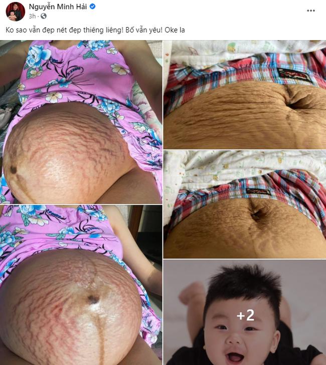 Ông xã Hòa Minzy có hành động gây chú ý sau khi vợ công khai hình ảnh bụng rạn hậu sinh con-1