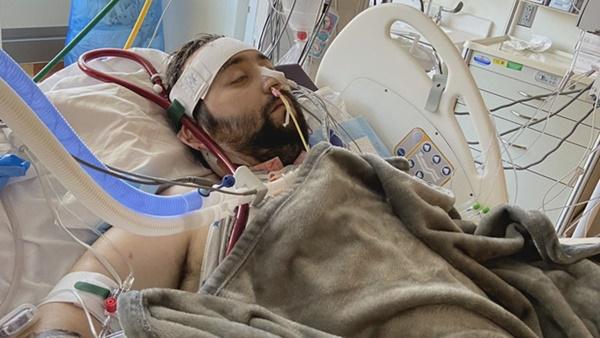 Người đàn ông bị Covid ăn sạch cả hai phổi và điều kỳ diệu đến từ cảnh tăm tối nhất-2