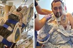 Người đàn ông bị Covid 'ăn sạch' cả hai phổi và điều kỳ diệu đến từ cảnh tăm tối nhất