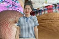 Từ việc Hòa Minzy khoe bụng rạn: Khoe ảnh chân thực có phải là hy sinh hay gây nên sự ám ảnh, sợ hãi?