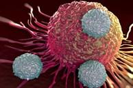 1/6 số ca ung thư là do viêm, bác sĩ chỉ ra 5 loại thực phẩm dễ gây viêm, ăn càng nhiều càng dễ bị ung thư