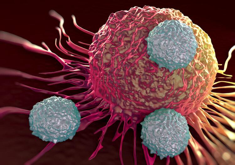 1/6 bệnh nhân mắc ung thư là do viêm: Nếu thấy cơ thể có 3 bộ phận này bị viêm, bạn nên đến viện khám ung thư khẩn cấp-1