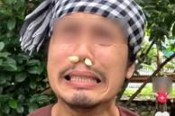 Trào lưu nhét tỏi vào mũi chữa viêm xoang rầm rộ trên Tiktok: Chuyên gia phản bác thế nào?