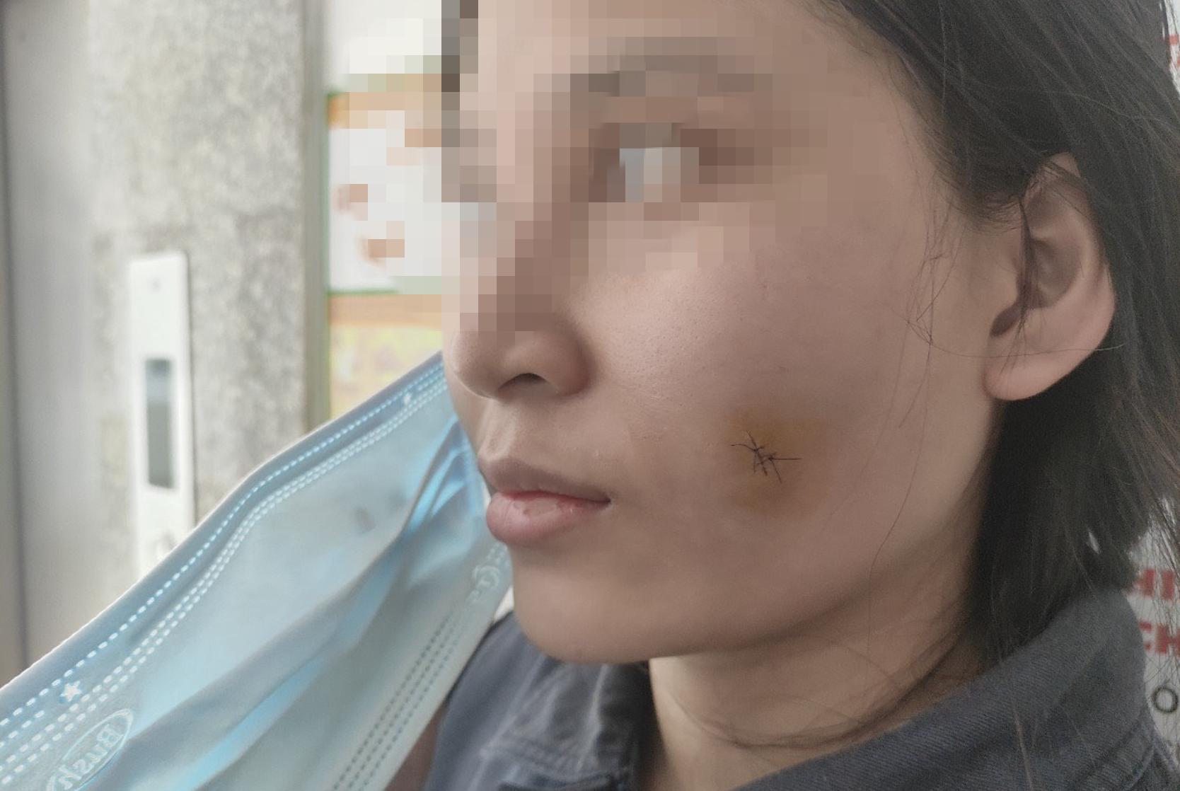 Tiêm filler 1.7 triệu/cc tại cơ sở thẩm mỹ, má cô gái sưng vù nhiễm trùng nặng nề-2