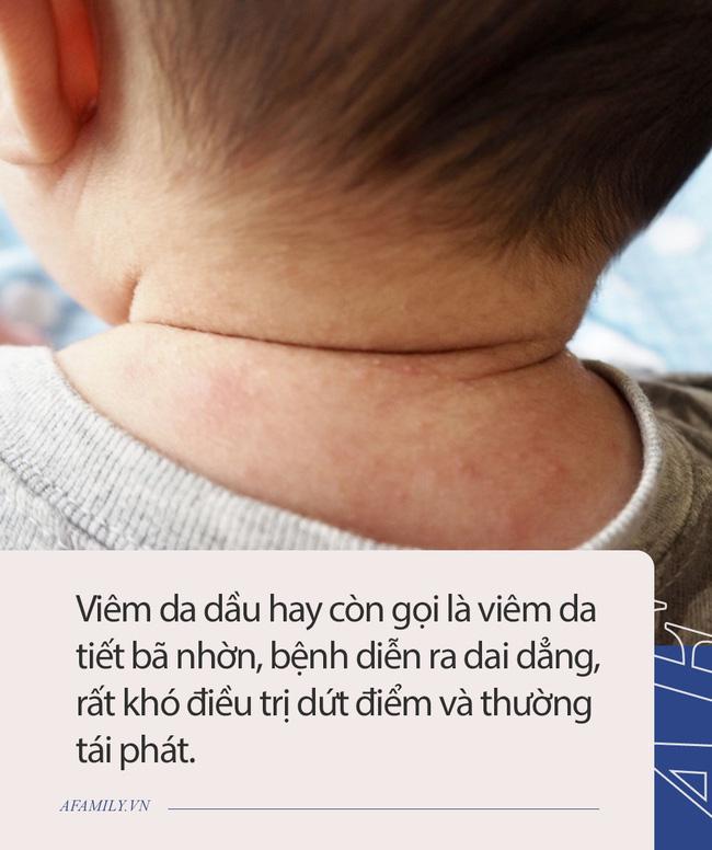 Nam diễn viên Đài Loan tiết lộ con trai bị bệnh về da, ga giường thường xuyên dính máu, hóa ra là căn bệnh đang hành hạ 5% dân số thế giới mỗi ngày-3