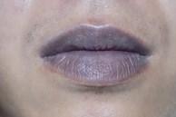 Nữ giới mà có tử cung xấu thì trên cơ thể sẽ có '2 đen, 1 mùi' xuất hiện, nếu có cả 3 thì nên cảnh giác
