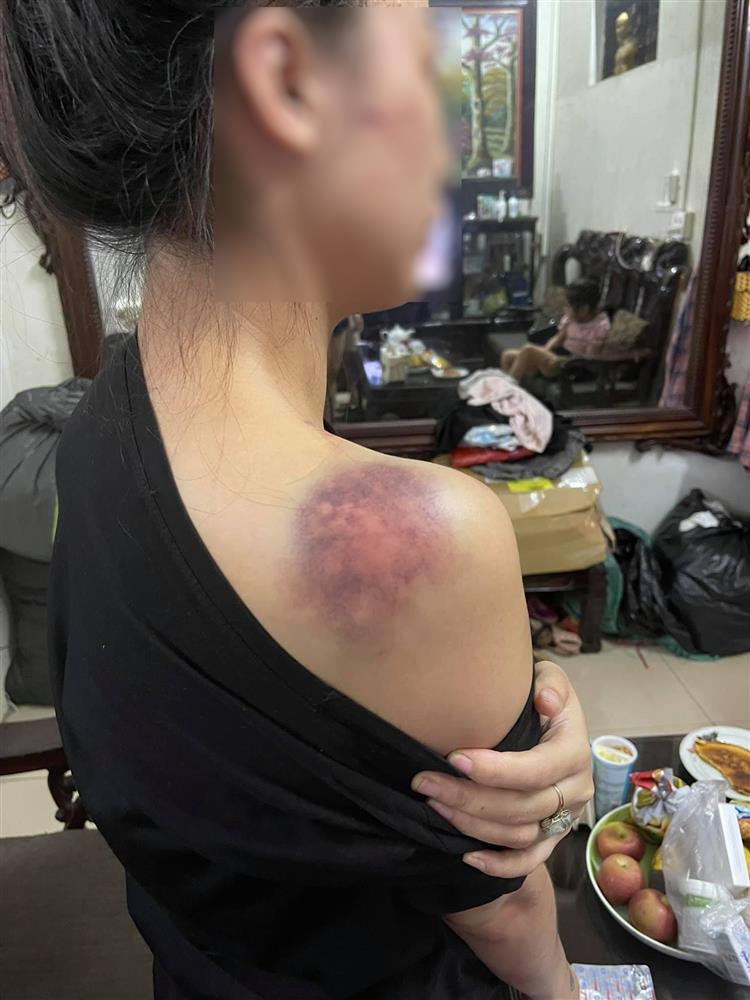 Nóng: Vợ 9X bị chồng bạo hành xuyên đêm, dùng cả gậy sắt đánh tới biến dạng khuôn mặt-2
