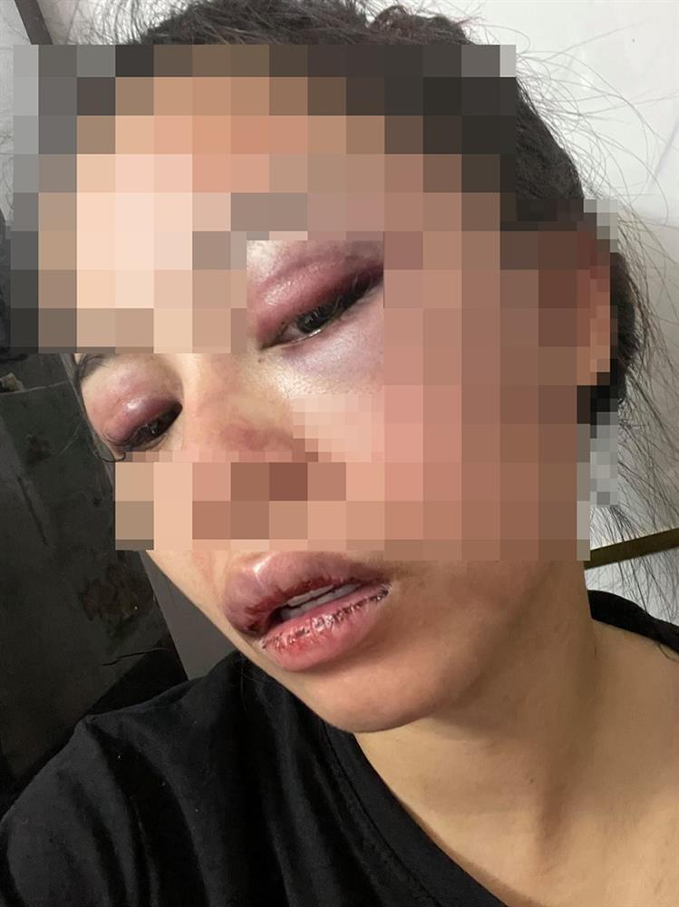Nóng: Vợ 9X bị chồng bạo hành xuyên đêm, dùng cả gậy sắt đánh tới biến dạng khuôn mặt-4