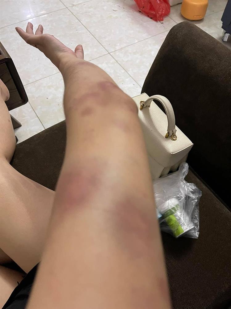 Nóng: Vợ 9X bị chồng bạo hành xuyên đêm, dùng cả gậy sắt đánh tới biến dạng khuôn mặt-5