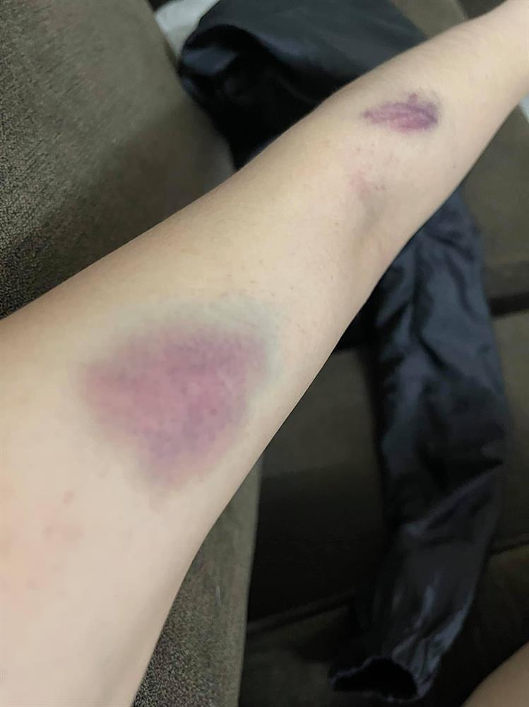 Nóng: Vợ 9X bị chồng bạo hành xuyên đêm, dùng cả gậy sắt đánh tới biến dạng khuôn mặt-8
