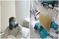 Ăn quá nhiều chân giò hầm, người phụ nữ đang mang thai 28 tuần tuổi nhập viện trong tình trạng nguy kịch, nhìn lượng mỡ tách ra từ máu gây sốc