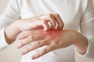 Thường xuyên bị tê mỏi tay, hãy cảnh giác vì nó có thể là dấu hiệu của 5 căn bệnh nguy hiểm này