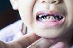 """Quan niệm """"ăn kẹo gây sâu răng"""" lẽ ra phải thay đổi từ lâu! Bé bị sâu răng vì làm sai 3 điều này"""