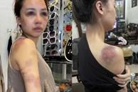 Cô vợ trong vụ bị chồng đánh đập dã man lên tiếng bài phốt của anh ta: Đêm kinh hoàng và pha tự cứu mình nghẹt thở
