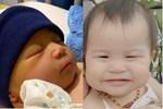 Bé gái mới sinh ai cũng khen mũi cao, vài tháng sau mũi tự nhiên tẹt khiến bố mẹ ngỡ ngàng, ngơ ngác
